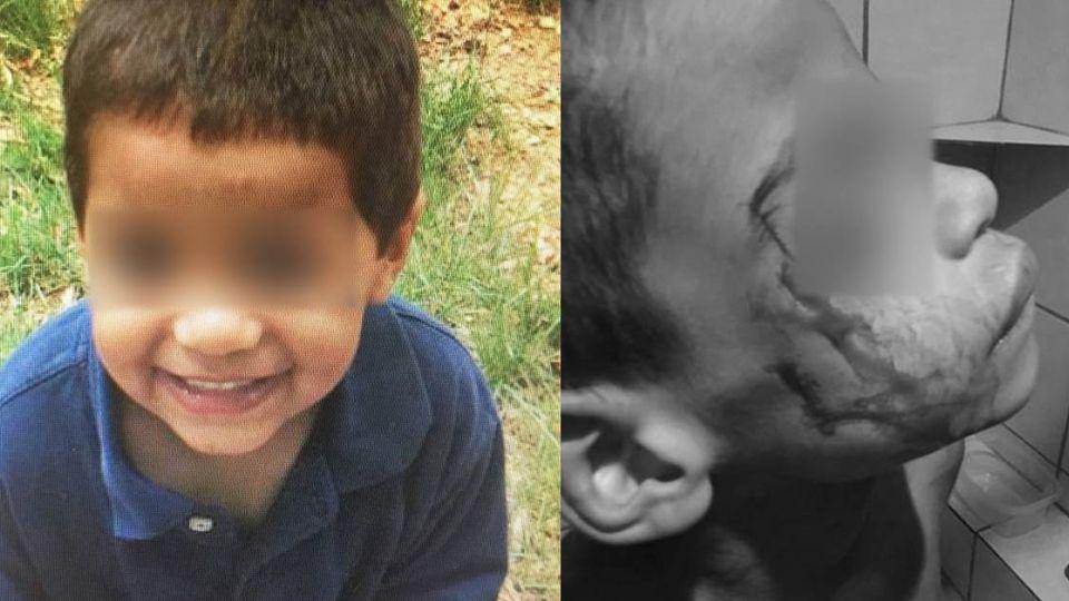 殘忍!遭生父電擊凌遲…7歲童屍餵豬吃 嚇壞房東急報警