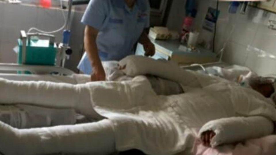 心疼!懷胎4月遇氣爆二度灼傷 她為寶寶堅持不打「止痛藥」