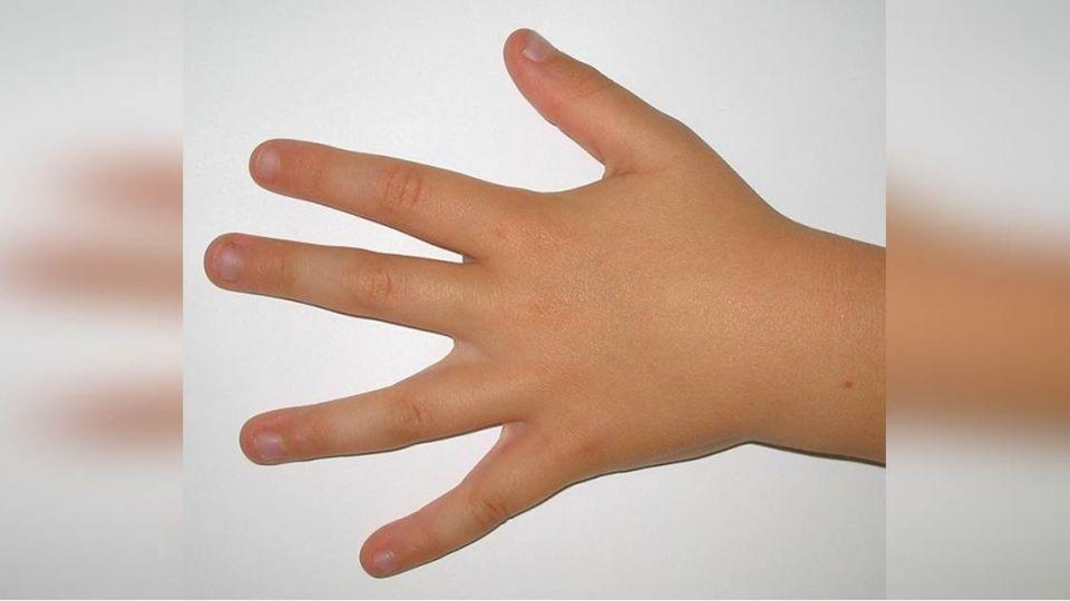 別再咬了!咬指甲「5大不良影響」 滿肚子骯髒細菌