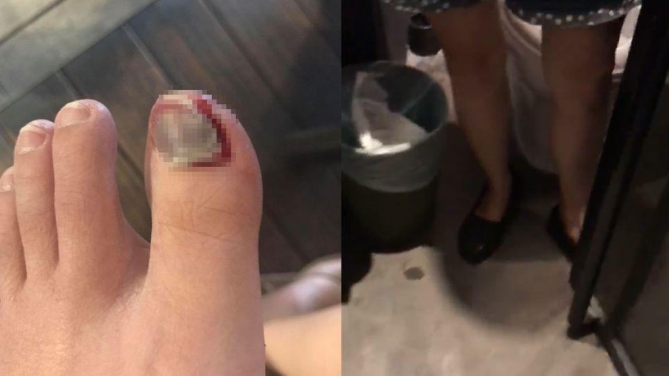 廁所太窄!女攝影師撞斷指甲求償天價 網怒批「敲詐」