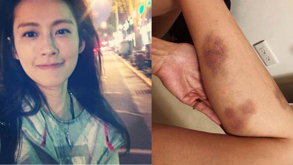 心疼!袁艾菲為戲騎檔車慘摔 雙腳佈滿「拳頭大瘀青」