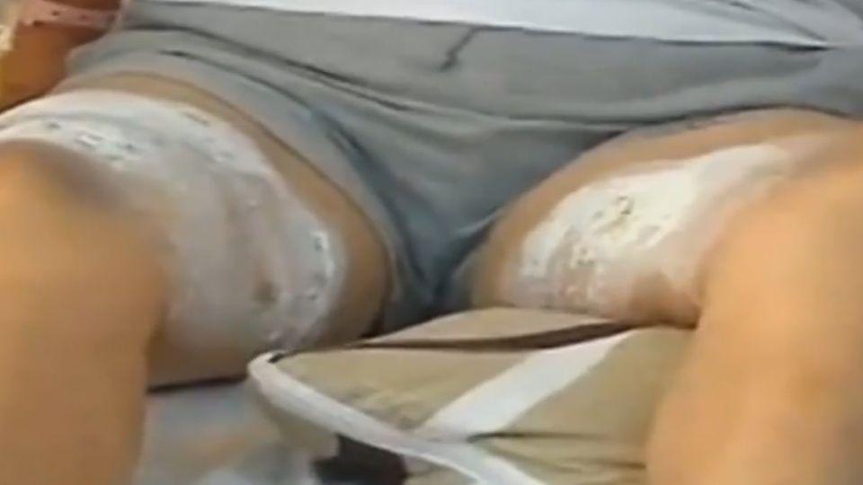湯鍋用液體酒精加熱 翻倒延燒顧客大腿