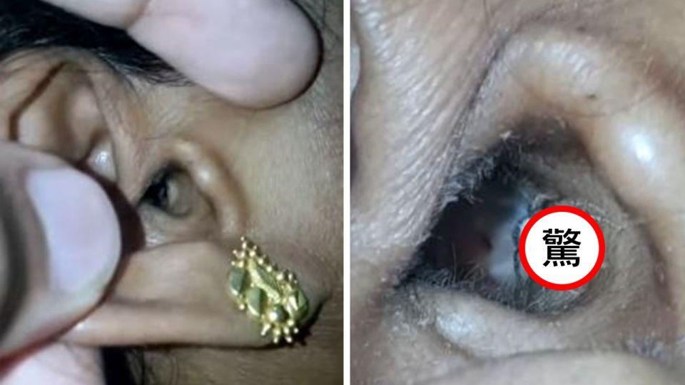 【影片】耳朵成「盤絲洞」!拿燈一照驚見「大眼蜘蛛」爬出來