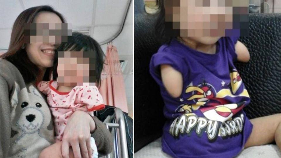 「單腳天使」出生僅1腿 雙臂剩殘肢 父母告醫生求償770萬敗訴