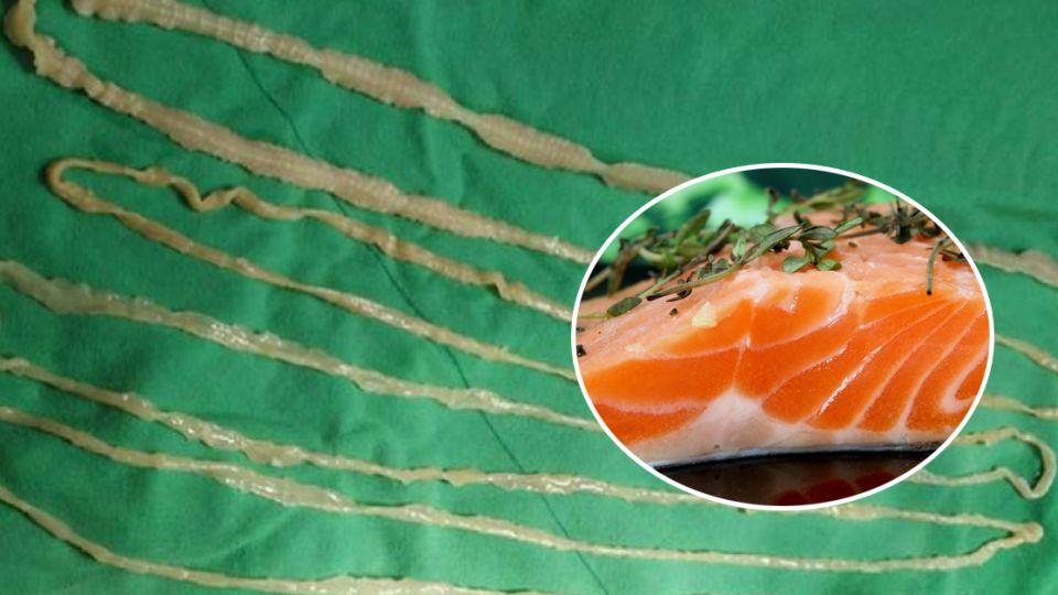 8歲女童肛門拉出2.6公尺寄生蟲 吃生魚片前你必須注意的五件事