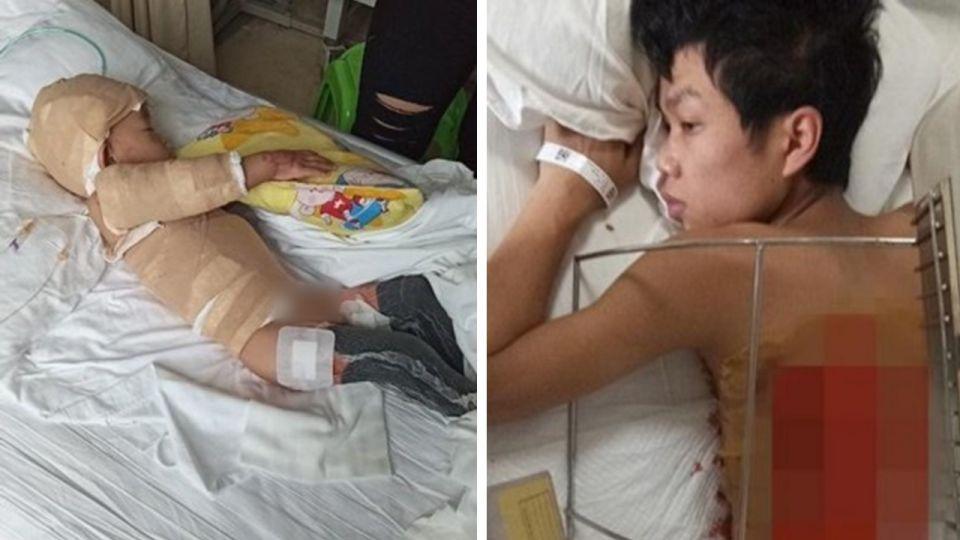 1歲嬰40%燒傷雙腳截肢 慈父捐皮救兒:要多少割多少!
