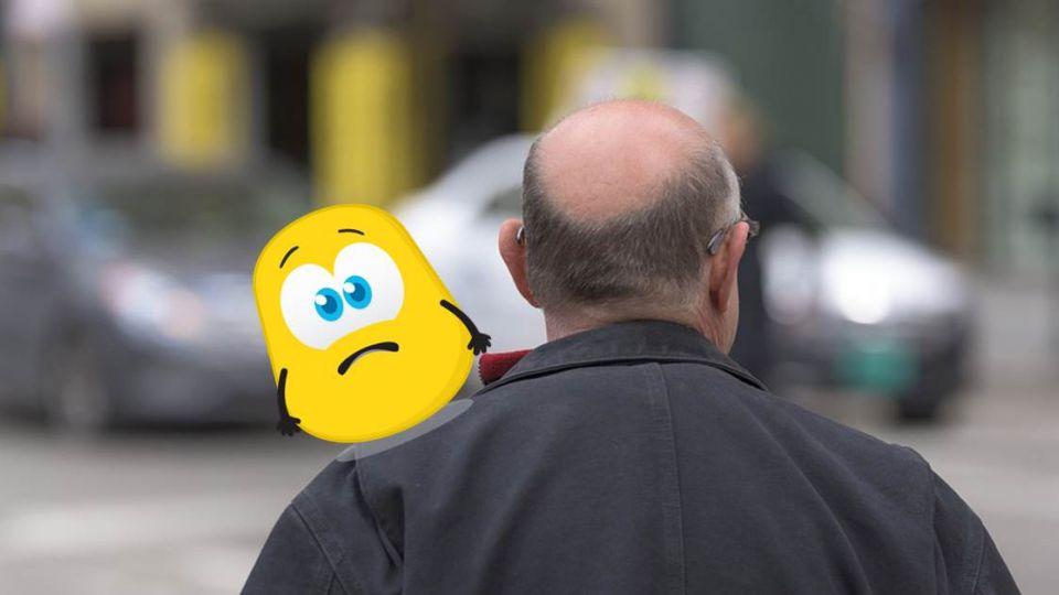 男子怨因「禿頭」求愛碰壁!網神回「2點」才是原因