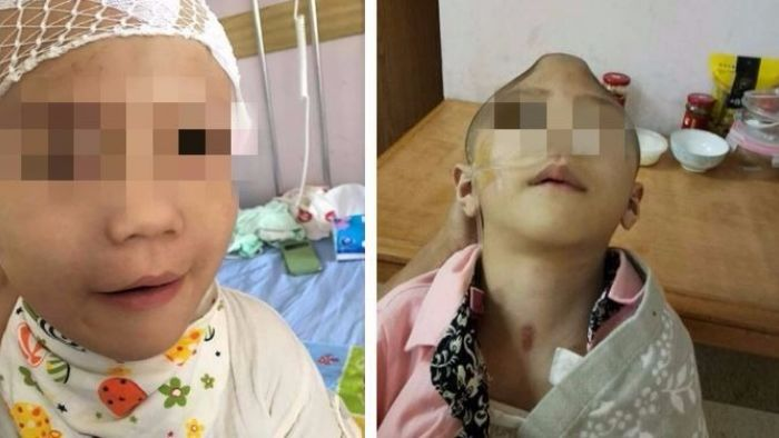 繼母虐毆!6歲童顱骨破碎重傷昏迷111天 親媽也不養