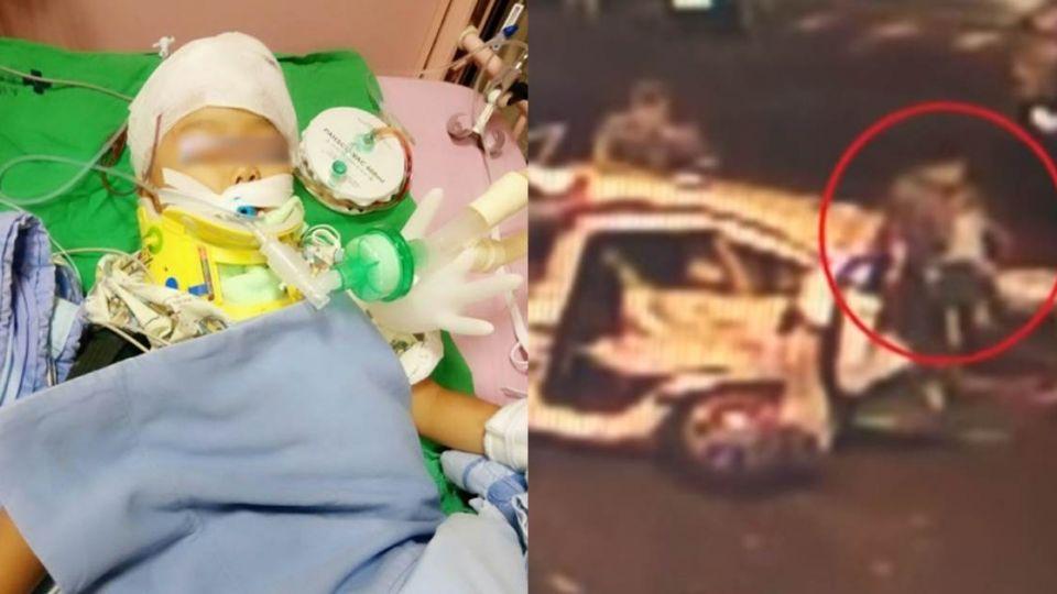 可自主呼吸了!父哥姐不治 萬丹3歲楊小妹開顱後病況好轉