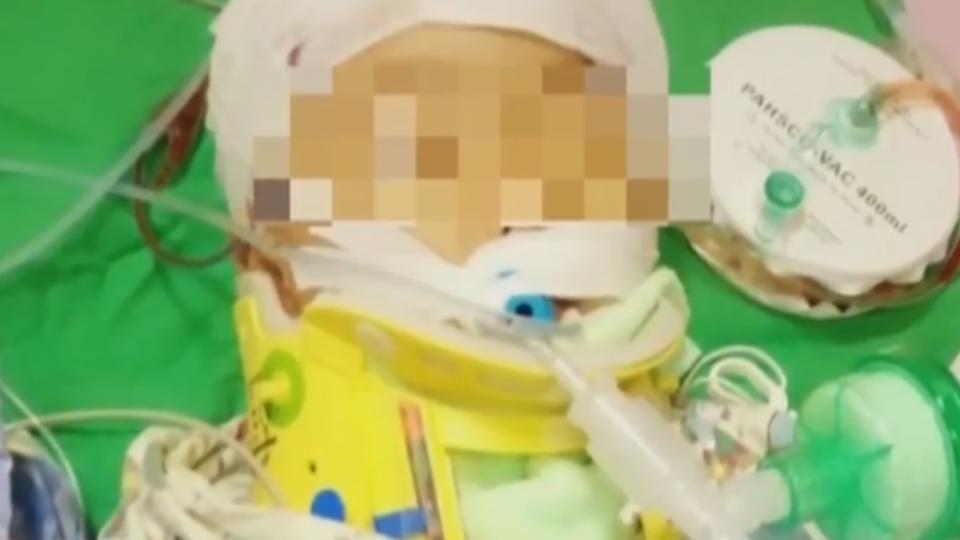 一家五口3死!重傷3歲楊小妹開腦手術集氣
