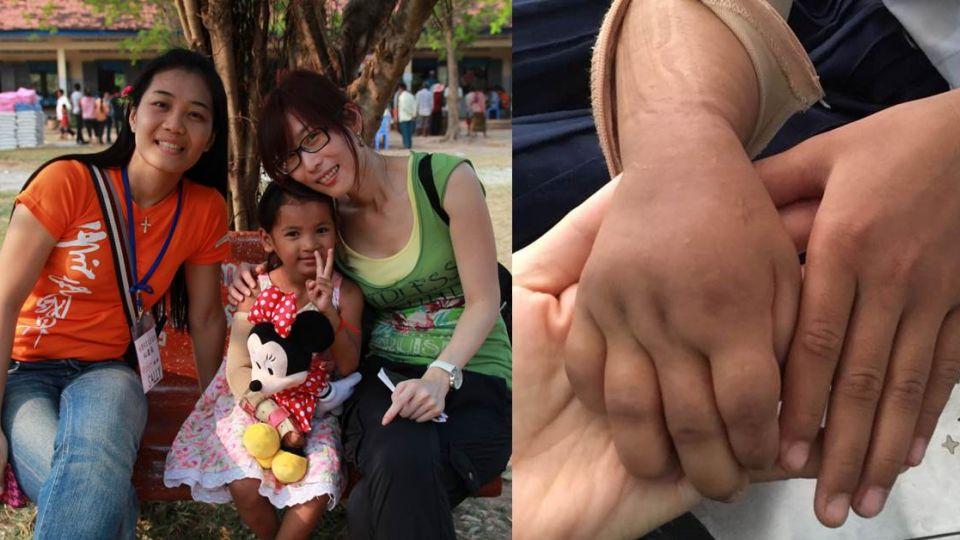 醫界軟實力外交突圍! 柬埔寨「象臂女孩」感謝台灣