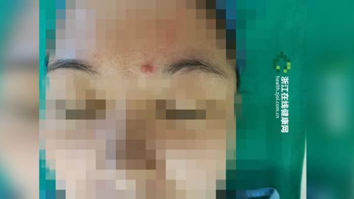 誇張!找醫美去除「觀音疤」 切開一看…竟是BB彈卡裡頭