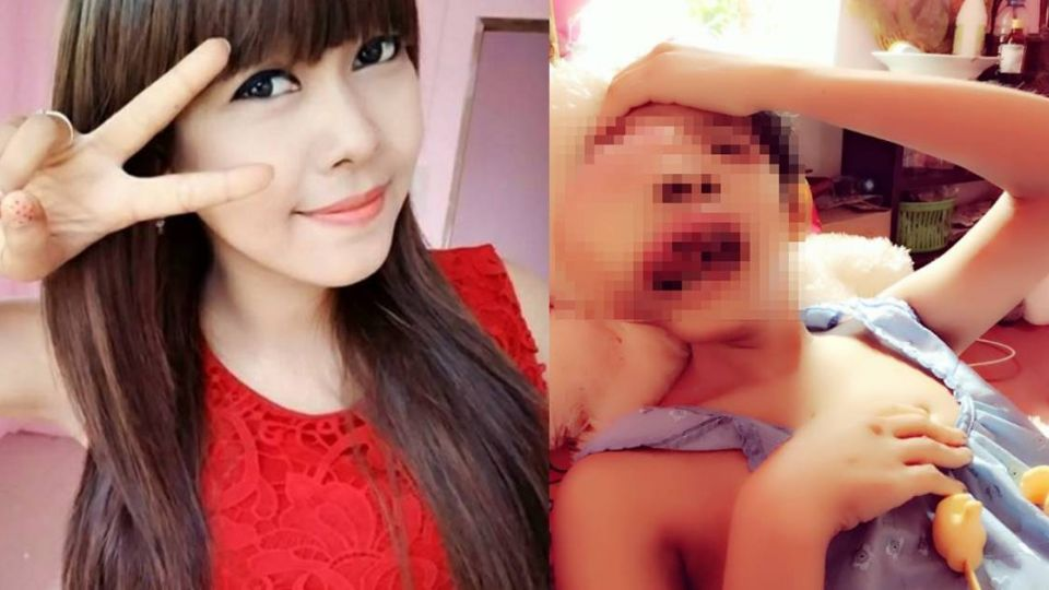 【更新】臉腫得像氣球…醫生放棄手術 28歲腫瘤癌正妹病逝了