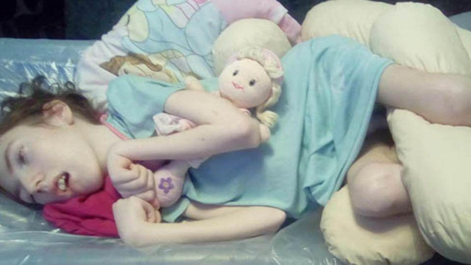 出生被陌生人「親一下」竟染皰疹病毒 13歲少女終生癱瘓
