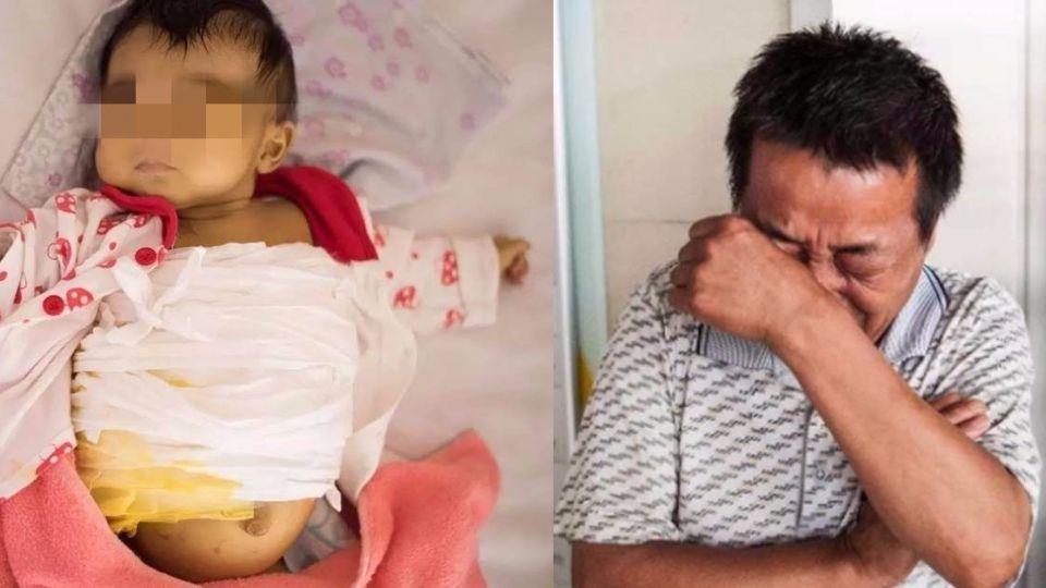 重症嬰肚皮「腫如球」 狠父母拒花錢動手術:不如再生一個