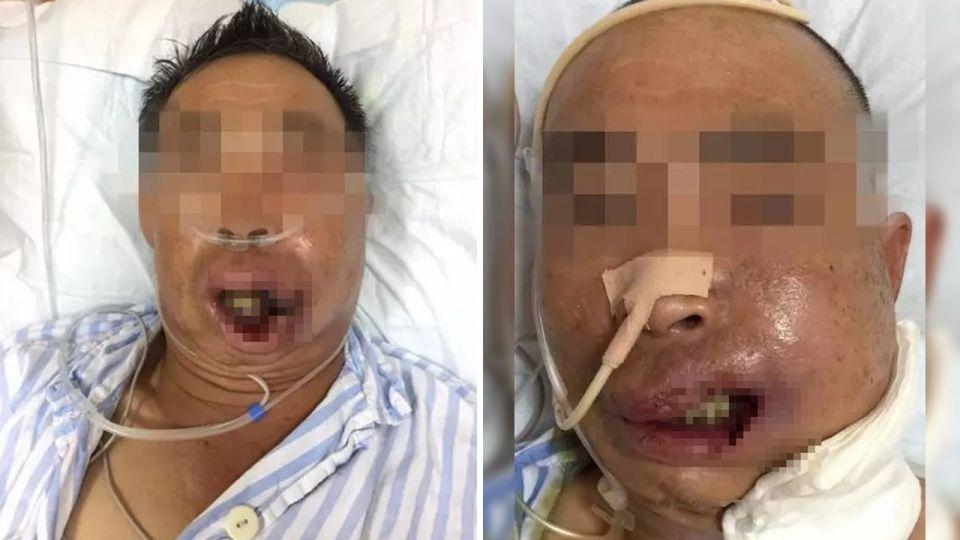 連收2病危通知…男擠破一顆痘痘竟「嘴腫流膿」險喪命