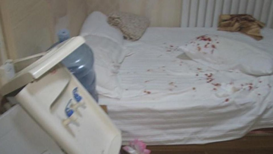 飯店枕頭藏「刺蝟」 女房客一坐…臀部噴血濺滿床