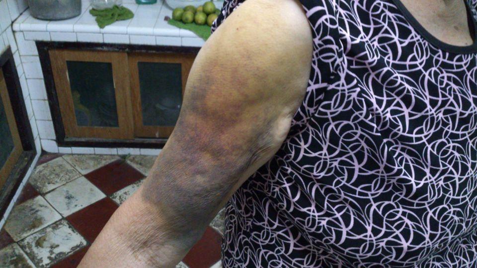 中秋吃柚子有「死亡風險」醫籲:「這些人」千萬別碰