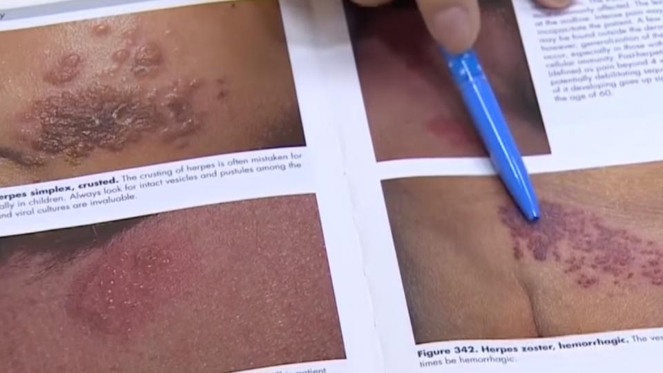 水痘病毒復發生「皮蛇」 神經疼痛相當「生產痛」