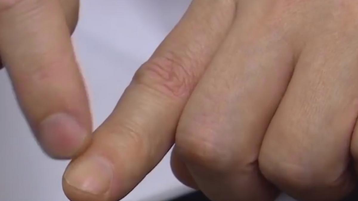 網傳缺維他命害「倒刺」 醫師駁:皮膚乾燥導致