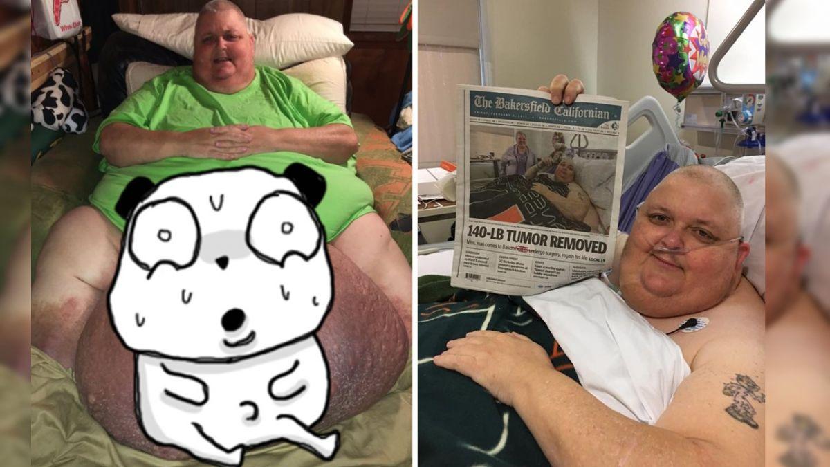 驚人!男胯下長60公斤巨瘤 竟是「一根毛」惹禍