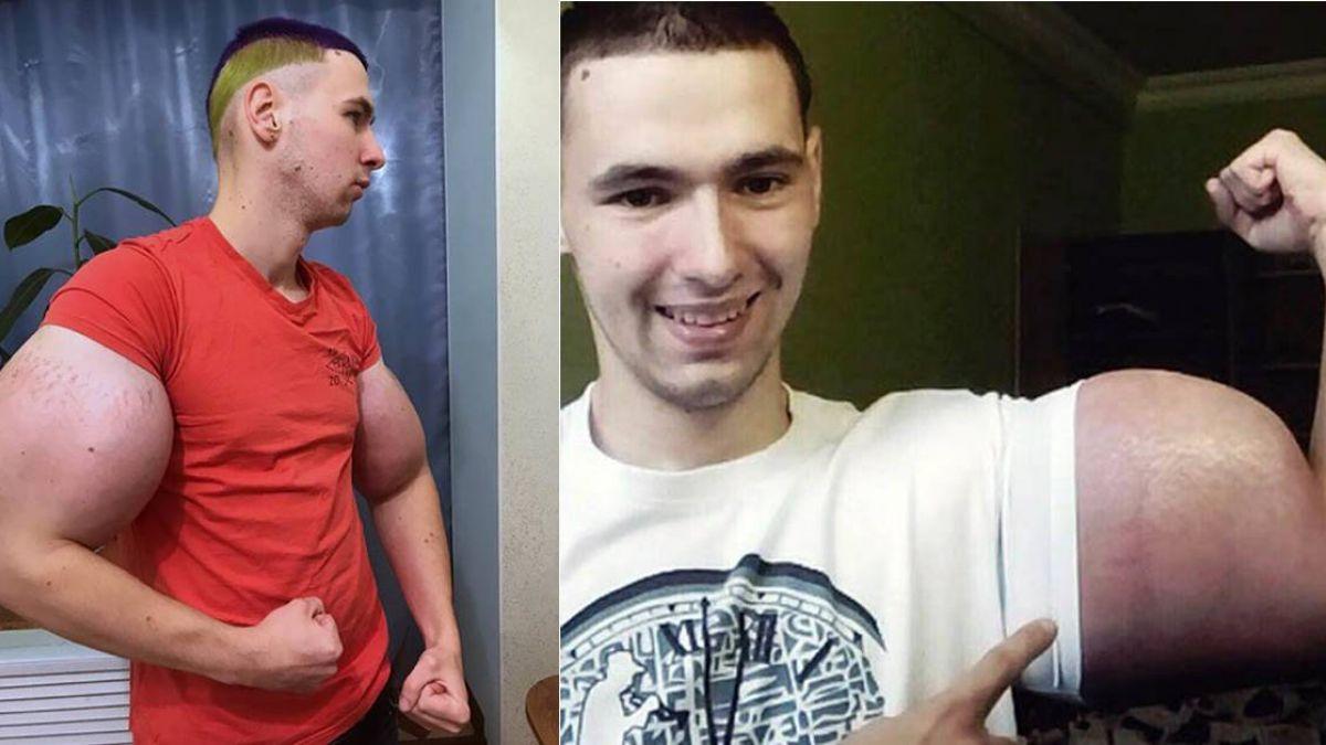 21歲男想當AV男優 注射6公升混合油變大肌肌…下場很慘