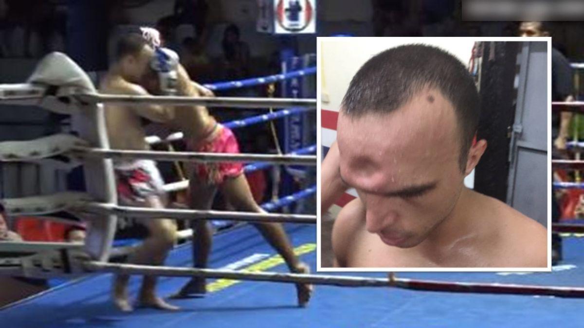 泰拳選手遭海扁!逼角落肘擊猛敲 額頭那個洞好深