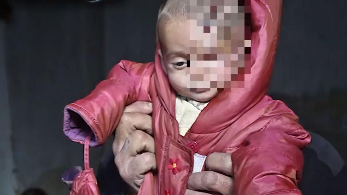 內戰彷彿無盡頭 敘利亞男嬰「獨眼照」令人心疼