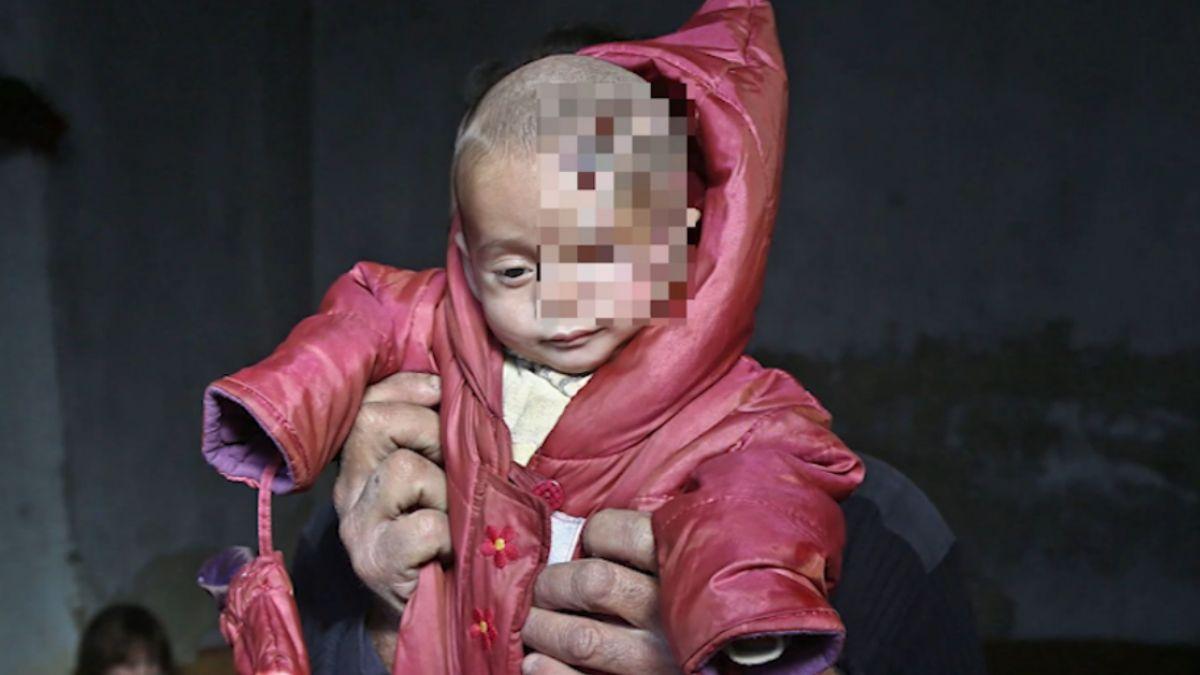 戰火讓他單眼看世界 敘國男嬰「獨眼照」揪心