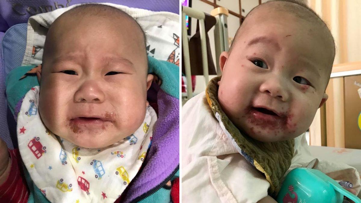 長輩別亂親!6個半月嬰染皰疹 紅疹爬滿整張臉