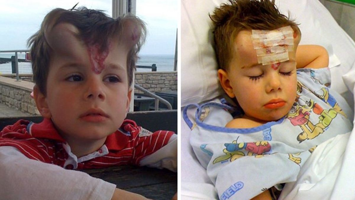 明明是天使!男童患病從小遭羞辱 母淚崩:為什麼像魔鬼?