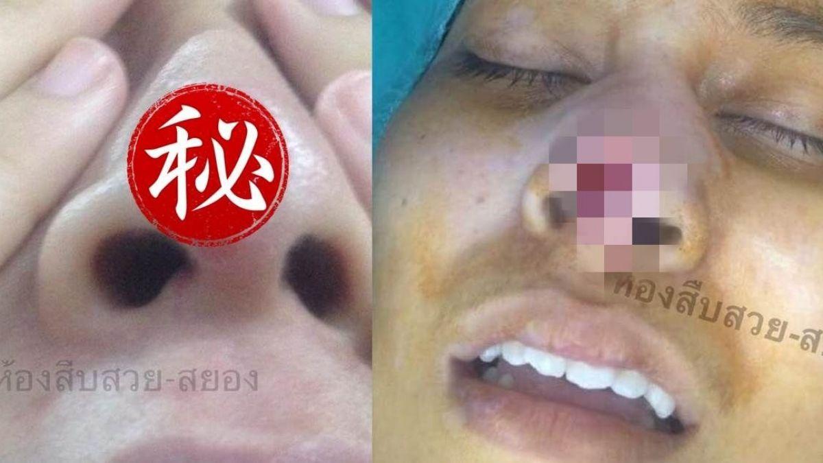 妙齡女找密醫整形!矽膠衝破鼻頭 手術一拔慘變3個鼻孔