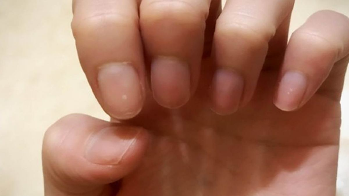 看指甲一窺「8個健康警訊」!黑點蔓延當心皮膚癌上身