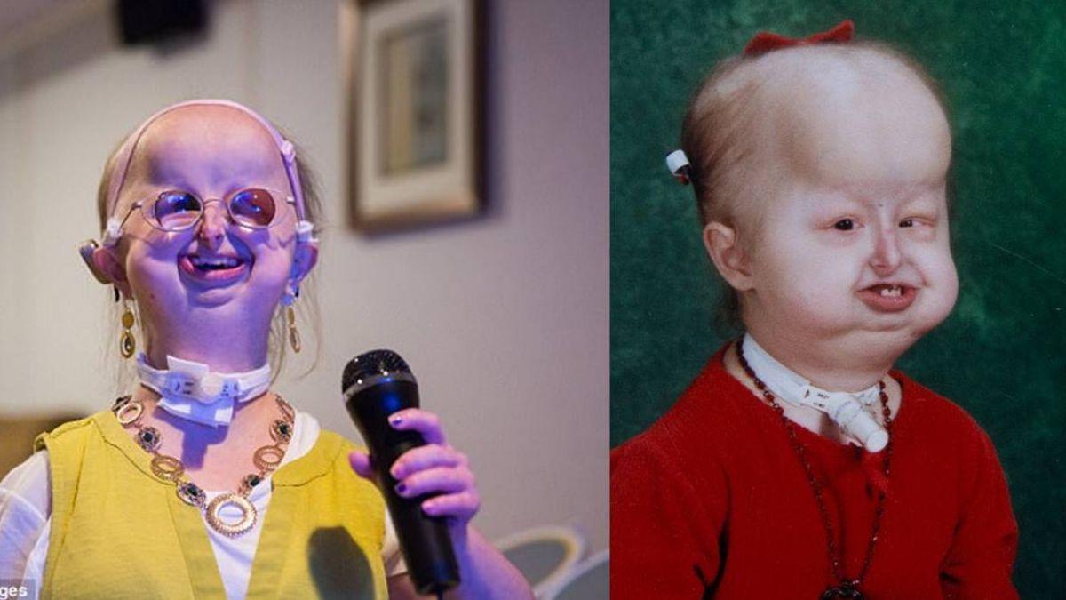 患罕見疾病20年!她畸形臉、侏儒身 最大願望:脫離母胎單身