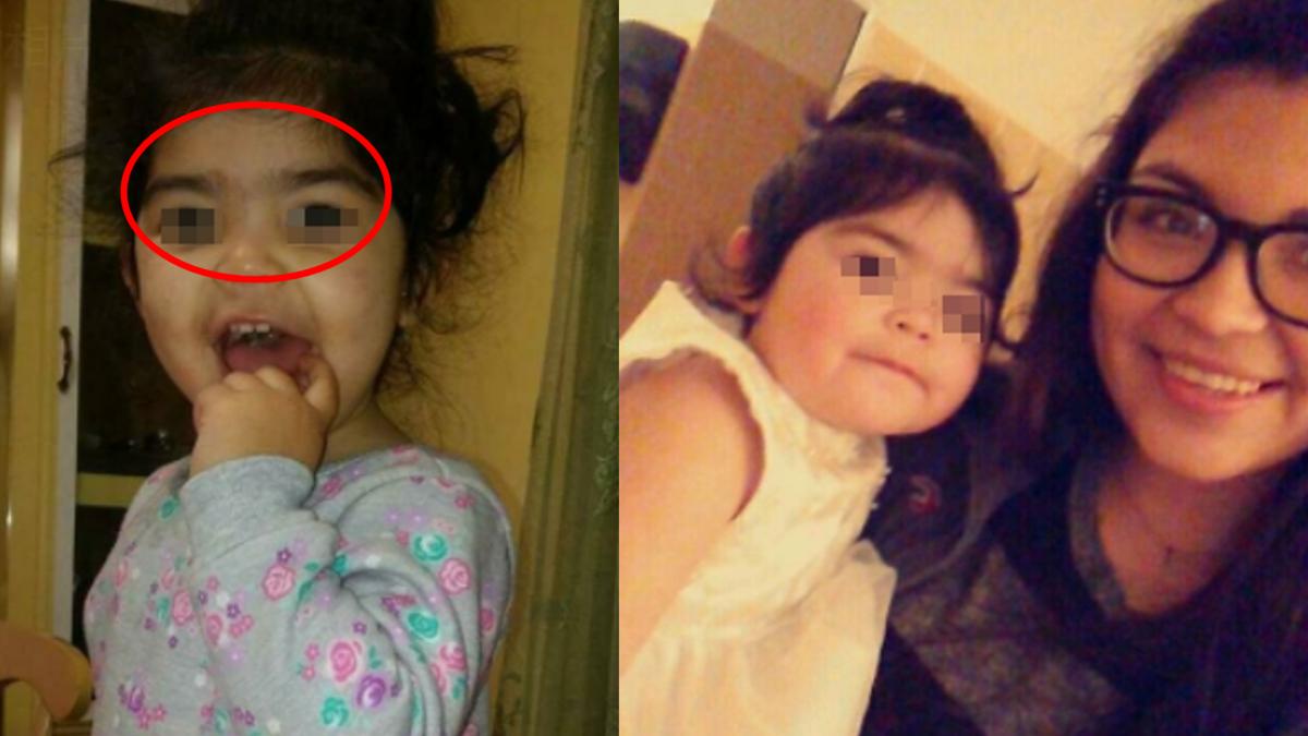 離譜!2歲女兒一字眉遭「剃毛」 母翻臉怒告托兒所