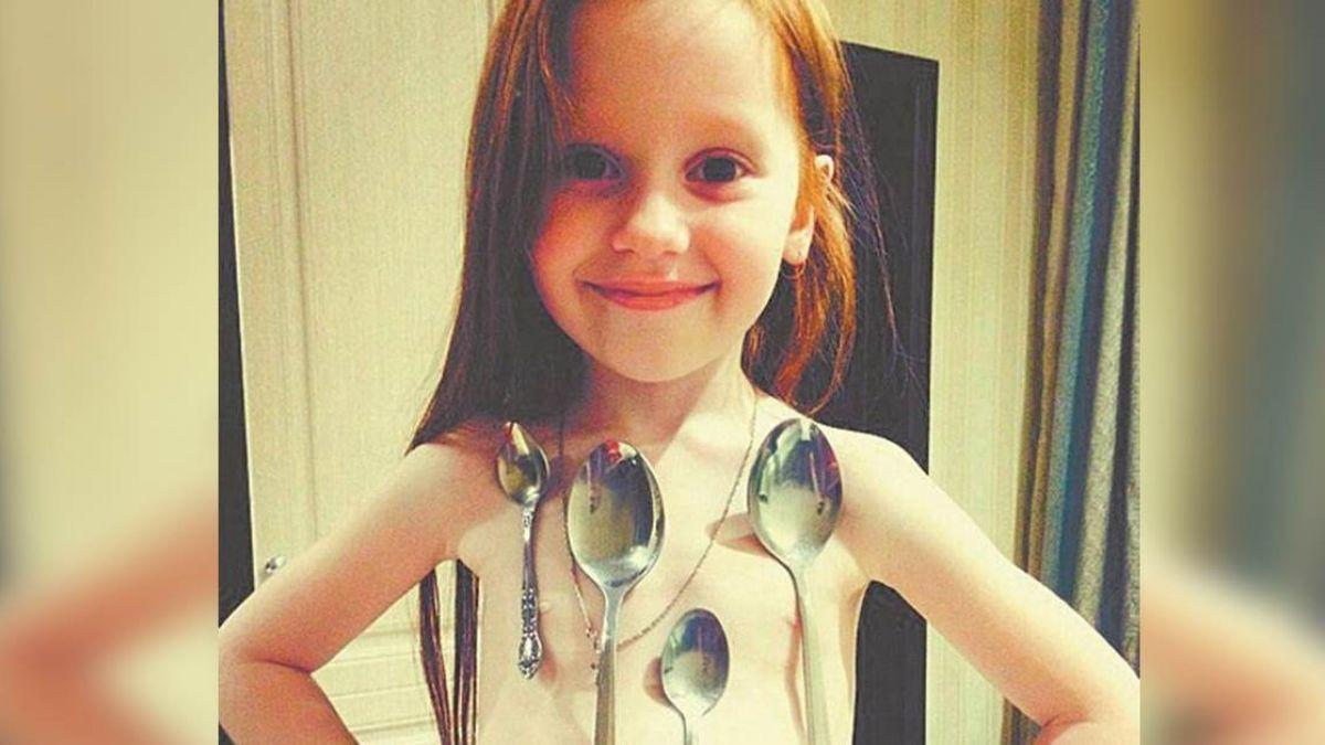 蘿莉萬磁王!遺傳超能力…6歲女童身體狂吸10湯匙