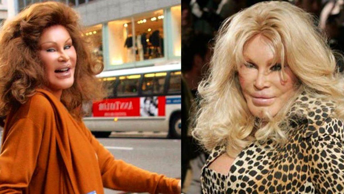 77歲富婆「花1億整成貓臉」嚇跑尪 新男友讚:她像16歲少女