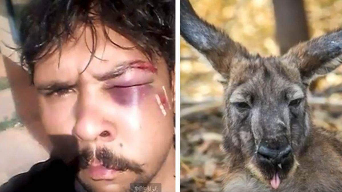 狩獵袋鼠反挨揍…重擊臉部「骨頭碎」 男驚:剛剛你打我?