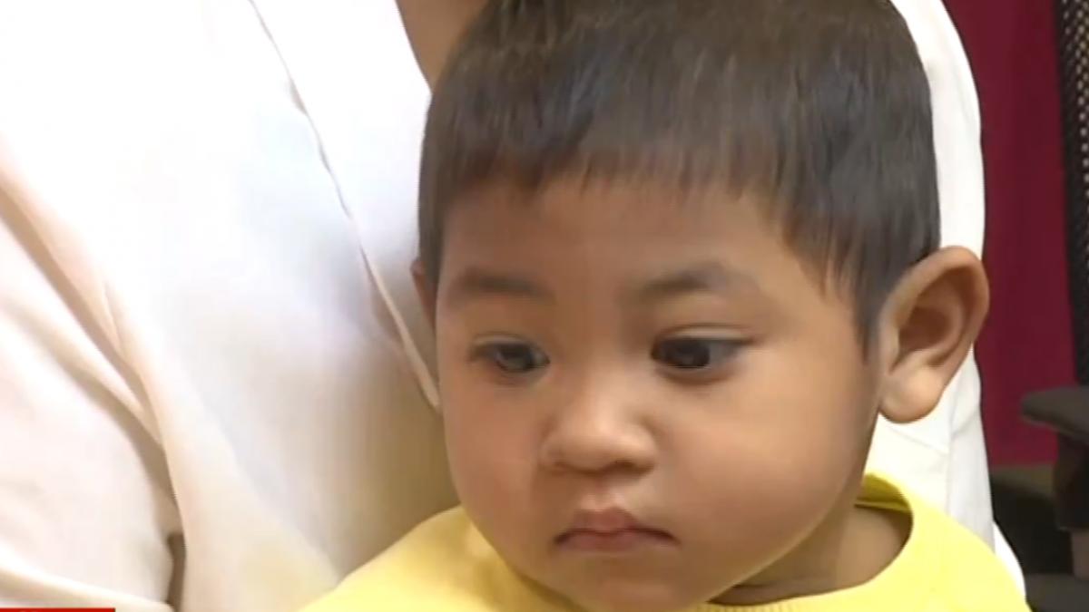 緬甸女童雙腿燙傷變形 來台手術恢復行走