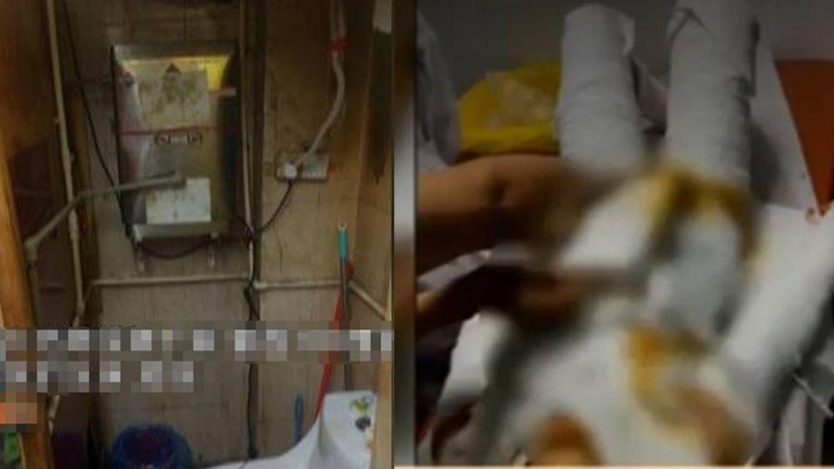 廁所熱水爐掉下!21歲小模慘遭潑滾水 全身燙傷命危