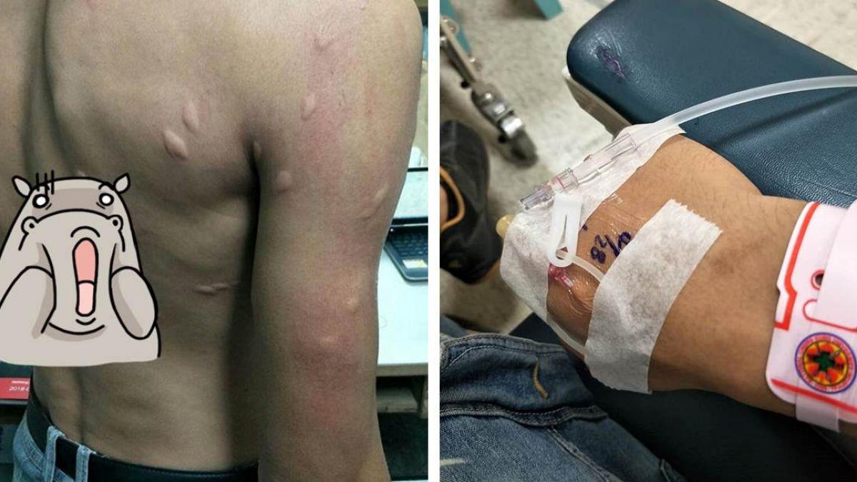 蚊子叮滿背!男裸上身秀恐怖腫包…隔天「蜂窩性組織炎」住院