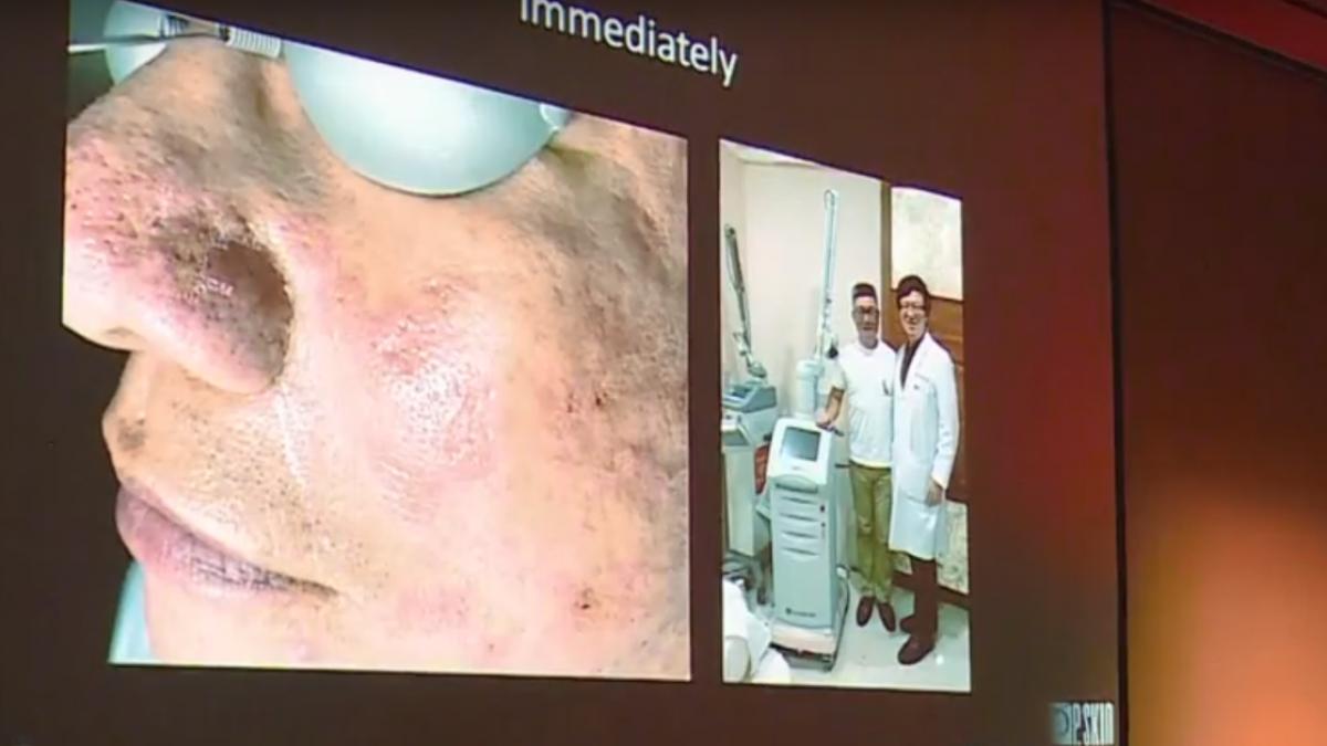 嚴重凹疤深度瓶頸 新雷射技術痘疤應用