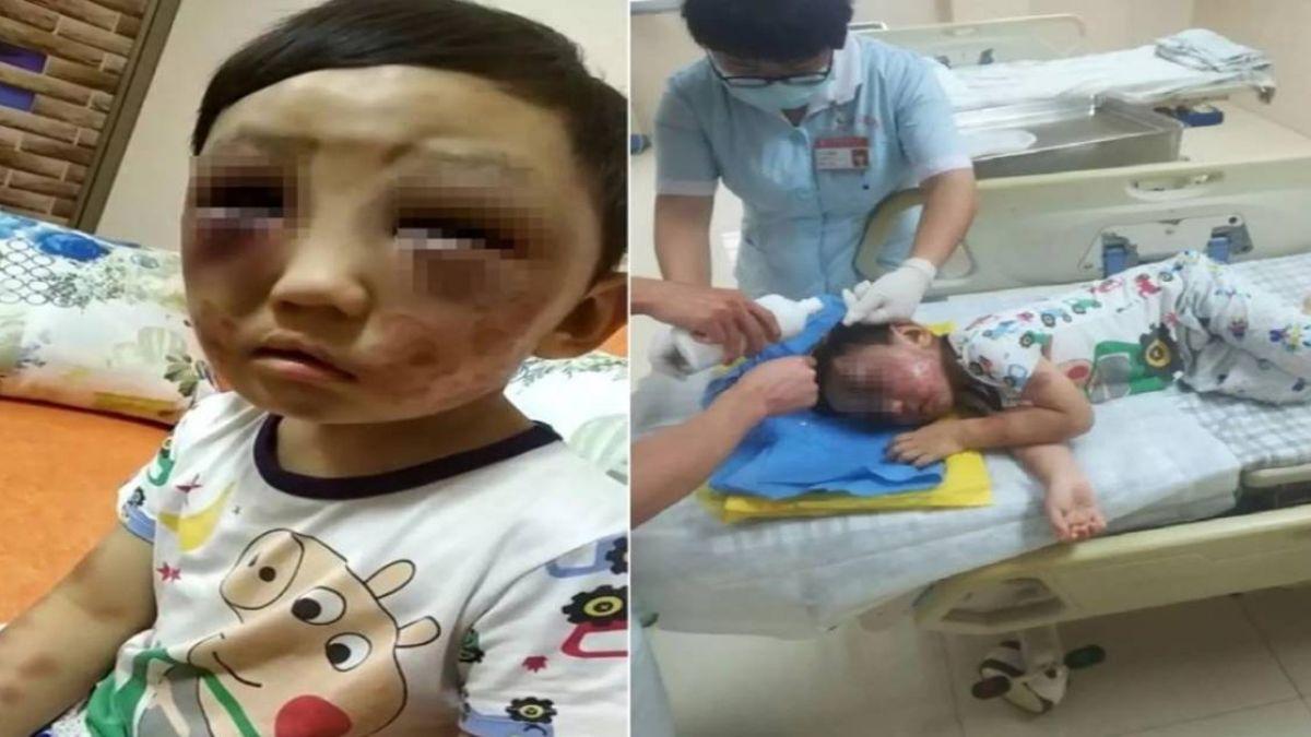 4歲童「雙眼瘀青」逃家求救 狠母嗆:打小孩天經地義