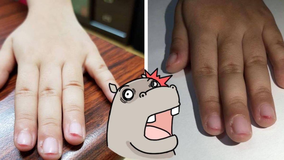十大酷刑再現?女兒抓傷同學被強行剪指甲「十指見血肉」