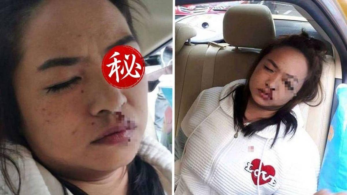 計程車追撞!女乘客剛好在化妝…眼線筆半截插入左眼