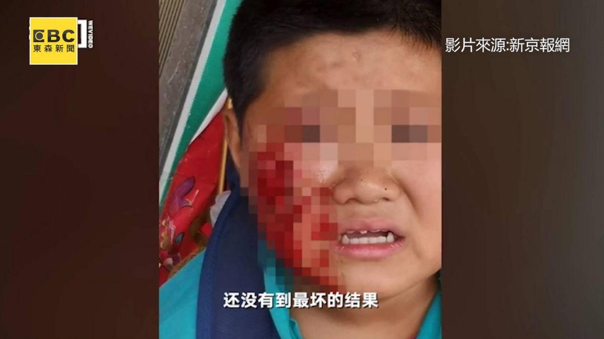 抓狂惡犬連咬6童 11歲男右臉頰遭啃「破大洞」