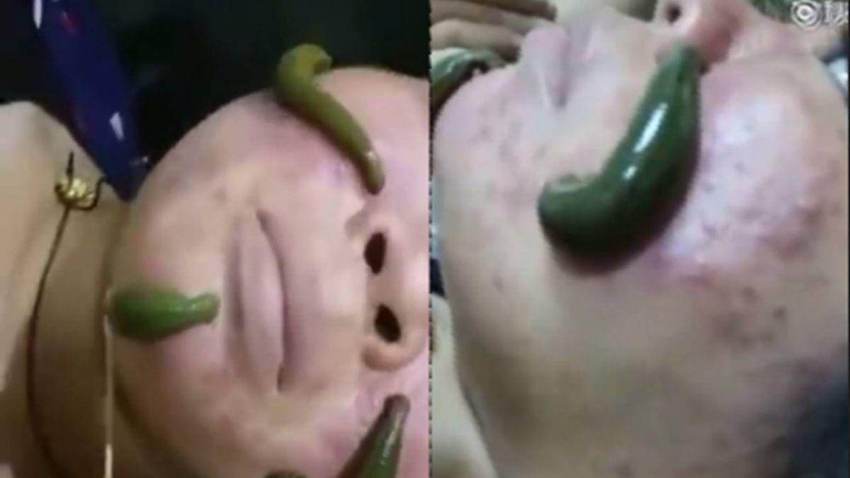 蠕動水蛭清痘痘! 美容師:千年療法還可撫平皺紋