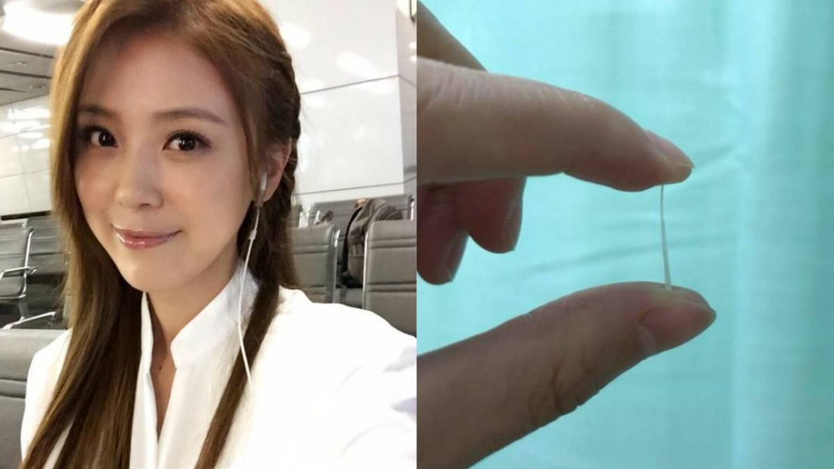 女星喉嚨卡2公分魚刺!手抓舌頭、吞20公分長夾 驚險過程曝光