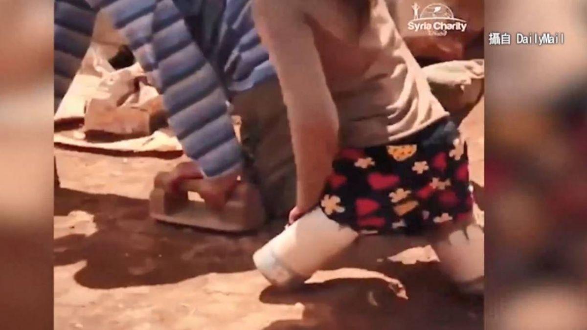 慟!沒錢裝義肢 敘利亞女童父自製「罐頭腳」 讓孩子上學