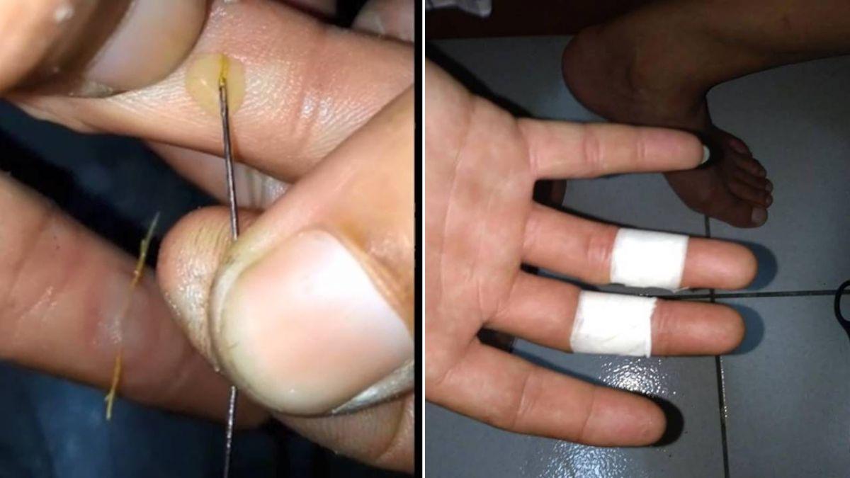 古法細針刺穿水泡…濃汁隨縫線爆出 網驚嘆:這會爽死你